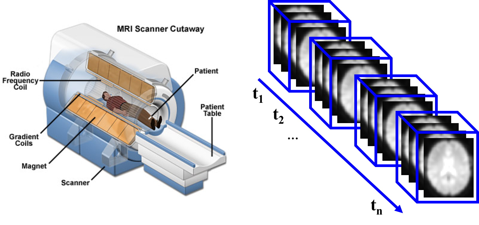 Figure 1: MRI Scanner and rs-fMRI time series acquisition.