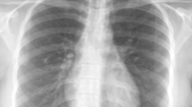 Detecting and Labeling Diseases in Chest X-Rays with Deep Learning