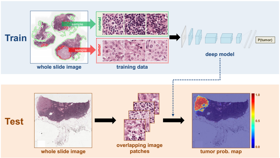 DL Breast Cancer Detection Image