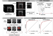 Improving Breast Cancer Detection in Ultrasound Imaging Using AI