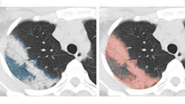 NIH, NVIDIA Use AI to Trace COVID-19 Disease Progression in Chest CT Images